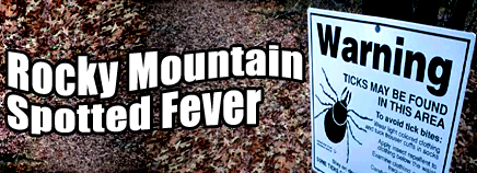Rocky Mountain Spotted Fever Natural History