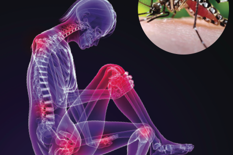 "Chikungunya Fever causes ""bonebreaking"" pain in joints"